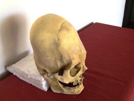 Skull peru parietal